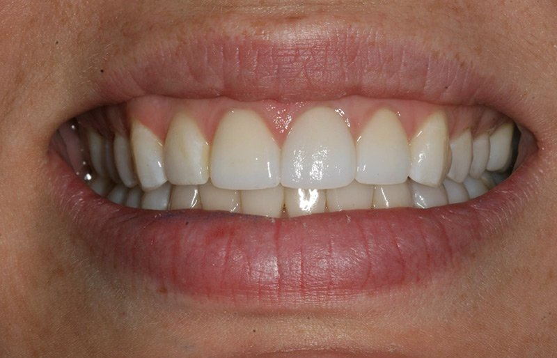 Why Healthy Gums Matter: Preventing Gum Disease