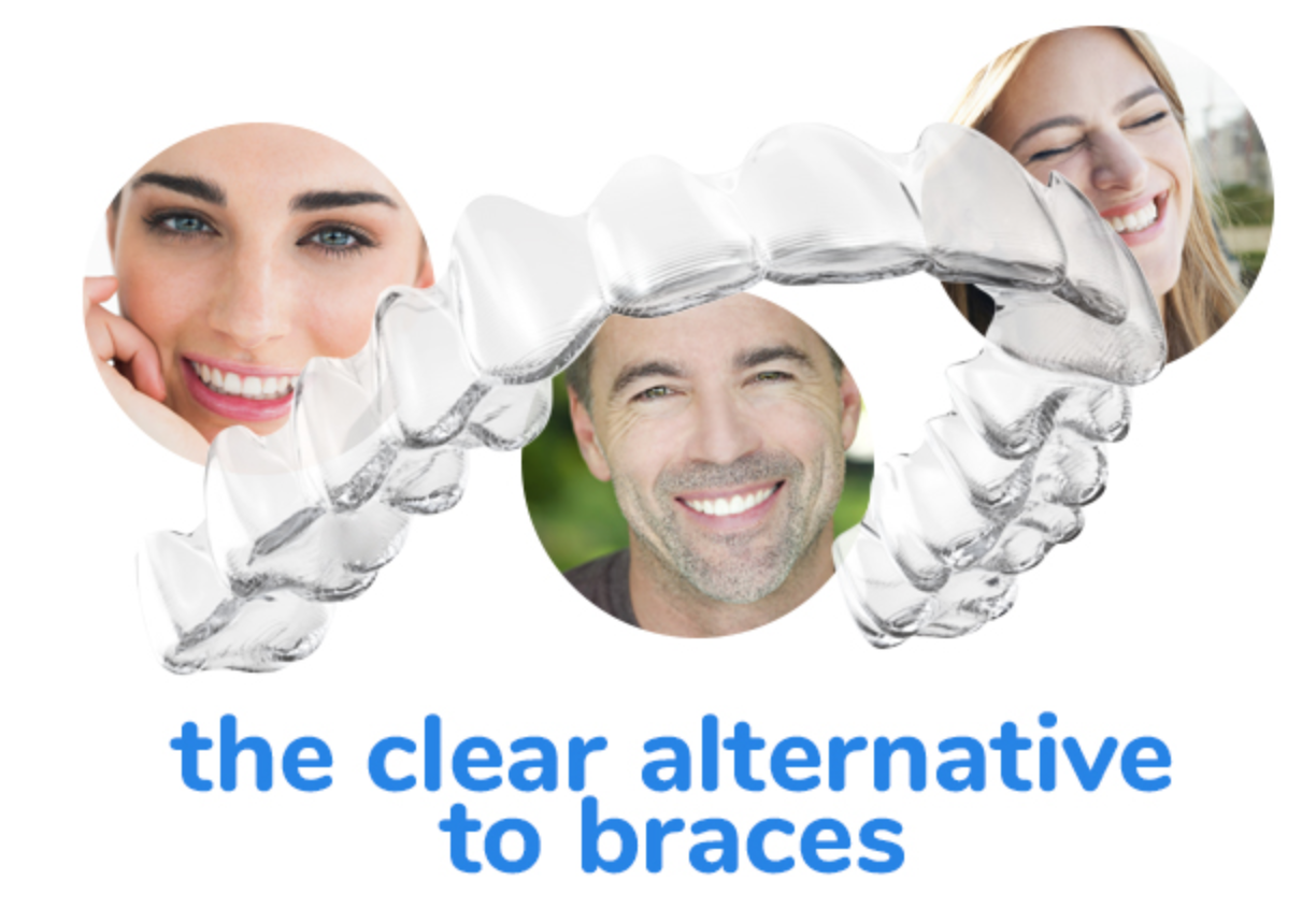 Achieve your best smile with Invisalign